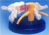 人體骨骼模型|大型脊椎骨質疏松、風濕痛和健康骨比較模型 GD0153F