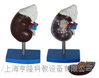 腎解剖附腎上腺模型 KAH/A310-3