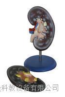 腎解剖模型2件 KAH/A310-2