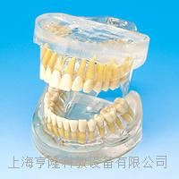 透明**牙模型 KAH/B10010