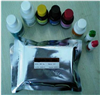 人28S抗核糖体抗体(28SrRNP)ELISA检测试剂盒说明书