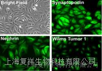BE(2)-M17 人神经母细胞瘤 CRL-2237